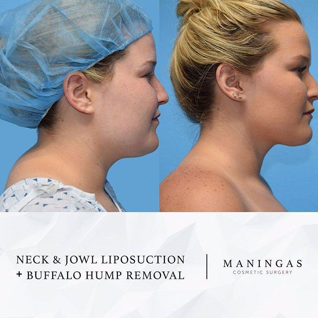 """#transformationtuesday Beautiful results by Dr. Maningas, or our triple board certified cosmetic surgeon! This patient came with concerns of a """"buffalo hump"""" or excess fat on the back of the neck that had bothered her for several years. She also had complaints of submental (under the chin) fullness. Dr. Maningas performed neck and jowl liposuction in addition to liposuction at the base of your neck area to address the buffalo hump! Look at her beautifully defined profile! 😍"""