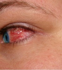 Home Remedies For Pink Eye - Natural Treatments & Cure For Pink Eye | Search Home Remedy