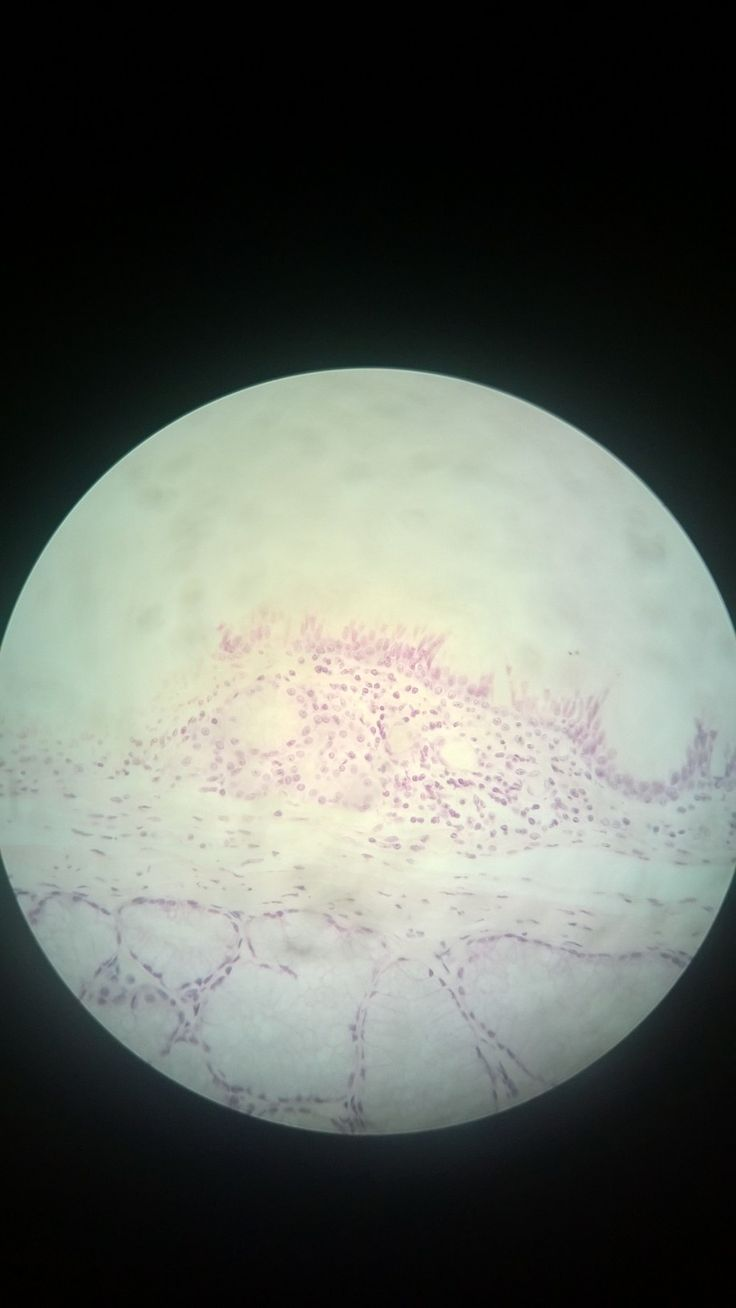 pseudostratified ciliated columnar epithelium
