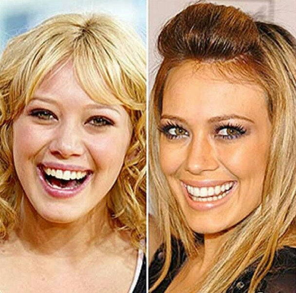 Before and After Plastic Surgery - Hilary Duff