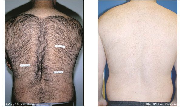 Lots of individuals document the process contains a bit of trauma even although laser therapy is a process which is favored. Electrolysis will probably be the most-used process, of the three, of men about to get epidermis that is slick.