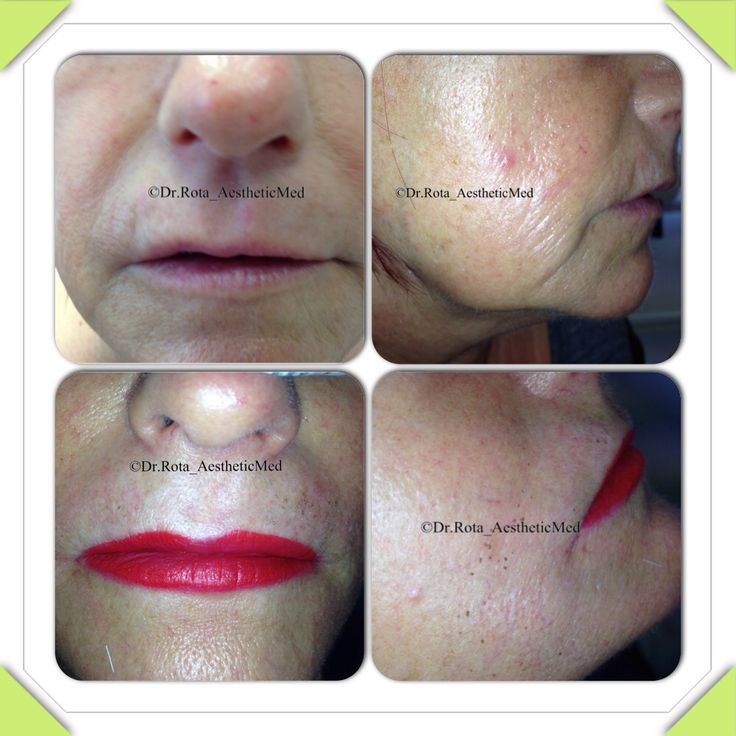 """Skin laxity . Pre e post treatment with """"Plexr """" . A superficial laser that work with Plasma technology"""