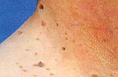 skin tags on neck treatment that works