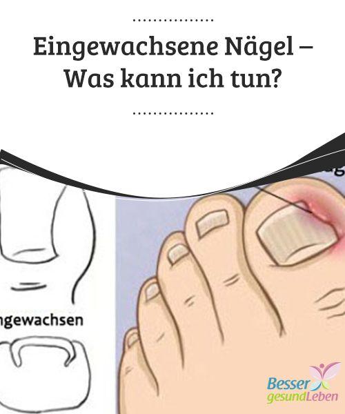 Eingewachsene #Nägel - Was kann ich tun? Zu eingewachsenen Nägeln kommt es wenn ein Nagel ins Fleisch oder ins #Nagelbett einwächst und sich die anliegende Haut rötet und #entzündet. Das kann bei jedem Zehen passieren, kommt jedoch am häufigsten am großen Zehen vor. Eingewachsene Nägel #können sehr schmerzhaft sein.