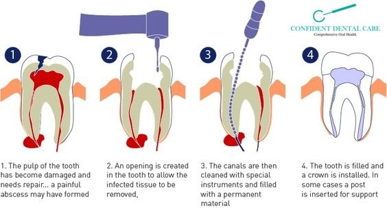 #Treatment for , infections , diseases and injuries for the #tooth #pulp visit us : http://confidentdentalcare.in/