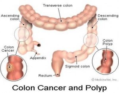 What is a hepatic flexure polyp?