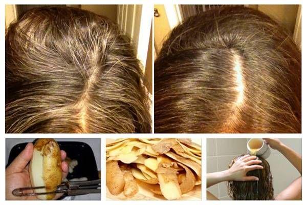 Egyszerű, de rendkívül hatékony burgonyás módszer, ami eltünteti az ősz hajszálakat