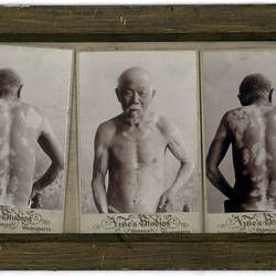 Photograph - Male Patient, circa 1920