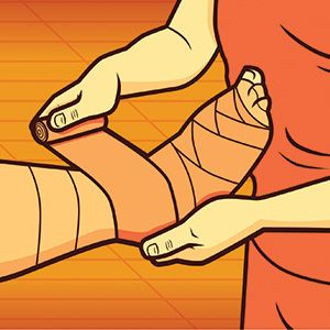 Lymphedema.  No Such Thing as Minor Swelling  Pinned by SOS Inc. Resources http://pinterest.com/sostherapy.