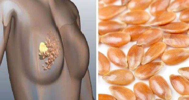 Comment prévenir le cancer du sein grâce à cet ingrédient ? Une astuce naturelle pour prévenir les risques de cancer du sein.