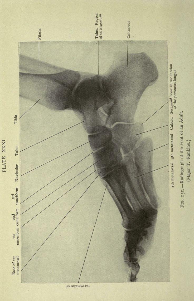194 best Anatomy images on Pinterest | Anatomy, Human anatomy and ...