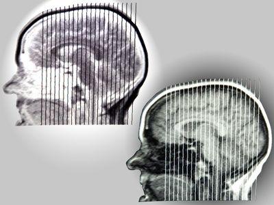 Degenerative White Matter Brain Disease   Headaches, tingling, MS, Lorenzo's Oil