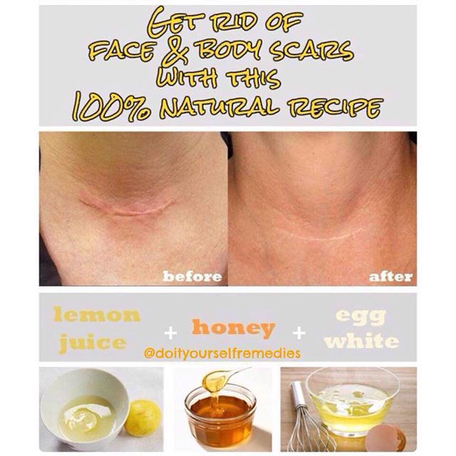 Ingredients: – 4 tsp lemon juice – 4 tsp honey – 1 egg white Instruction: – Add all ingredients in a bowl and mix them well – After mixing all ingredients, scar removal cream is ready for use – Apply the cream directly on the scars and leave on for 20 minutes – After 20 minutes, rinse the area with warm water – Follow the remedy once a day for at least 30 days, and you'll finally get rid of scars that have annoyed you for a lifetime!#doityourselfremedies @doityourselfremedies
