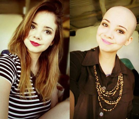 Shaved female heads before after you