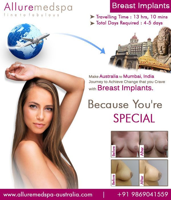 Breast Implants Surgery, also known as breast augmentation, is a surgical proced