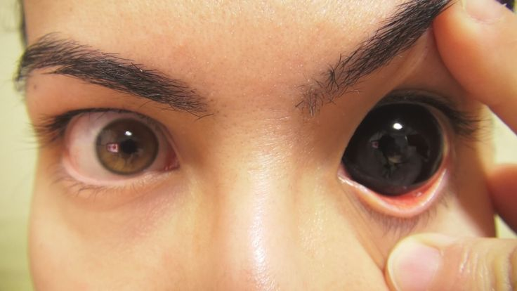 You can tattoo the Sclera around your pupil, it's sketchy ...