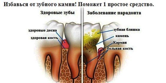 Вот это да!  Избавься от зубного камня! Поможет 1 простое средство.