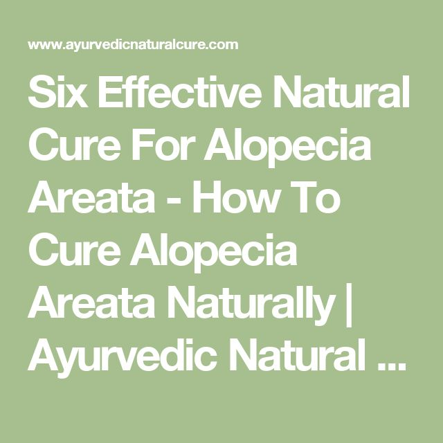 Six Effective Natural Cure For Alopecia Areata - How To Cure Alopecia Areata Naturally | Ayurvedic Natural Cure Supplements