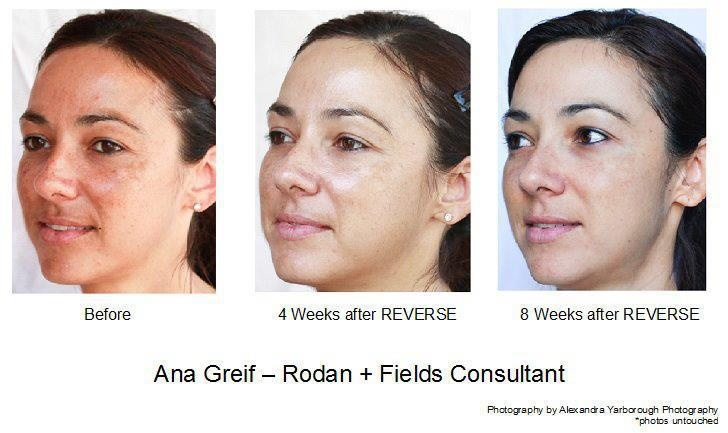 Get REVERSE for sun damage and age spots and change your skin today