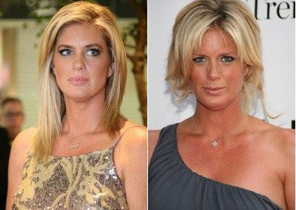 Rachel Hunter Plastic Surgery Before and After - https://www.celebsurgeries.com/rachel-hunter-plastic-surgery/