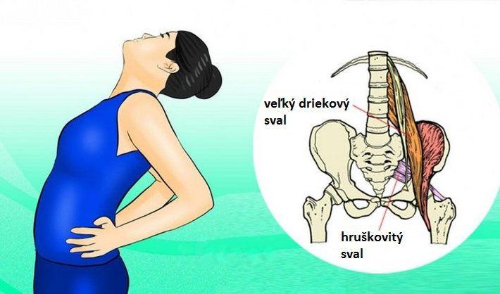 sedaci-nerv-piriformis