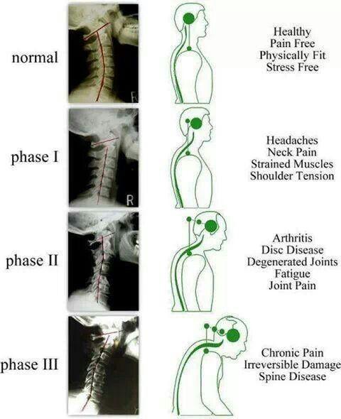 Neck pain.      I better make sure I get it under control stat! So I don't have a permanent problem!