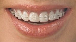 Frequently Asked Questions about Adult Orthodontics Treatments by Hungary Dental Implant!