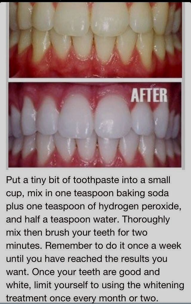 Pin On Teeth Whitening Tips