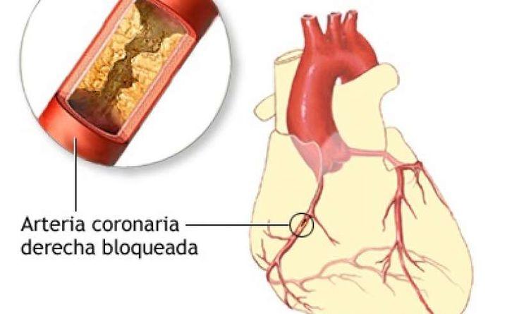 Si tus arterias están bloqueadas, no te preocupes que hay 3 ingredientes muy eficaces que nos ayudara a reducir y extinguir este problema con las arterias bloqueadas y al mismo tiempo eliminar la grasa mala de la sangre.  Las arterias son responsables del transporte de nutrientes y oxígeno al corazón y otros órganos importantes del cuerpo. Para preservar su salud, las arterias deben mantenerse limpios en todo momento.