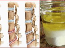 salt-and-oil-medicinal-mixture-after-its-application-you-will-not-feel-pain-for-several-years