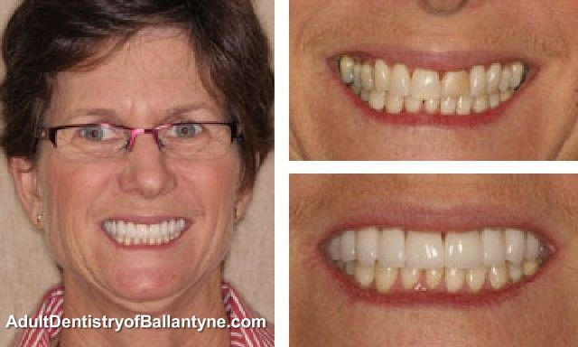 Kim Before and After Cosmetic Dentistry.