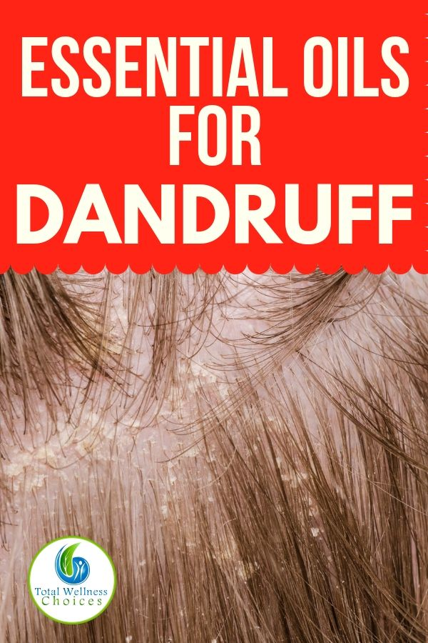 Top 9 Essential Oils For Dandruff Oils For Dandruff Essential