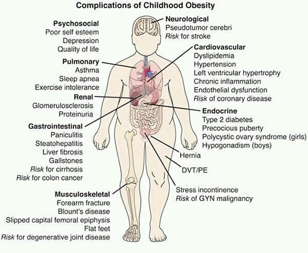 What is my research plan if I'm studying the connection between childhood obesity and self-esteem?