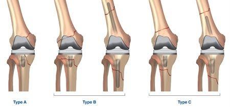 Maîtrise Orthopédique » Articles » Fractures périprothétiques de la hanche, du genou et de l'épaule