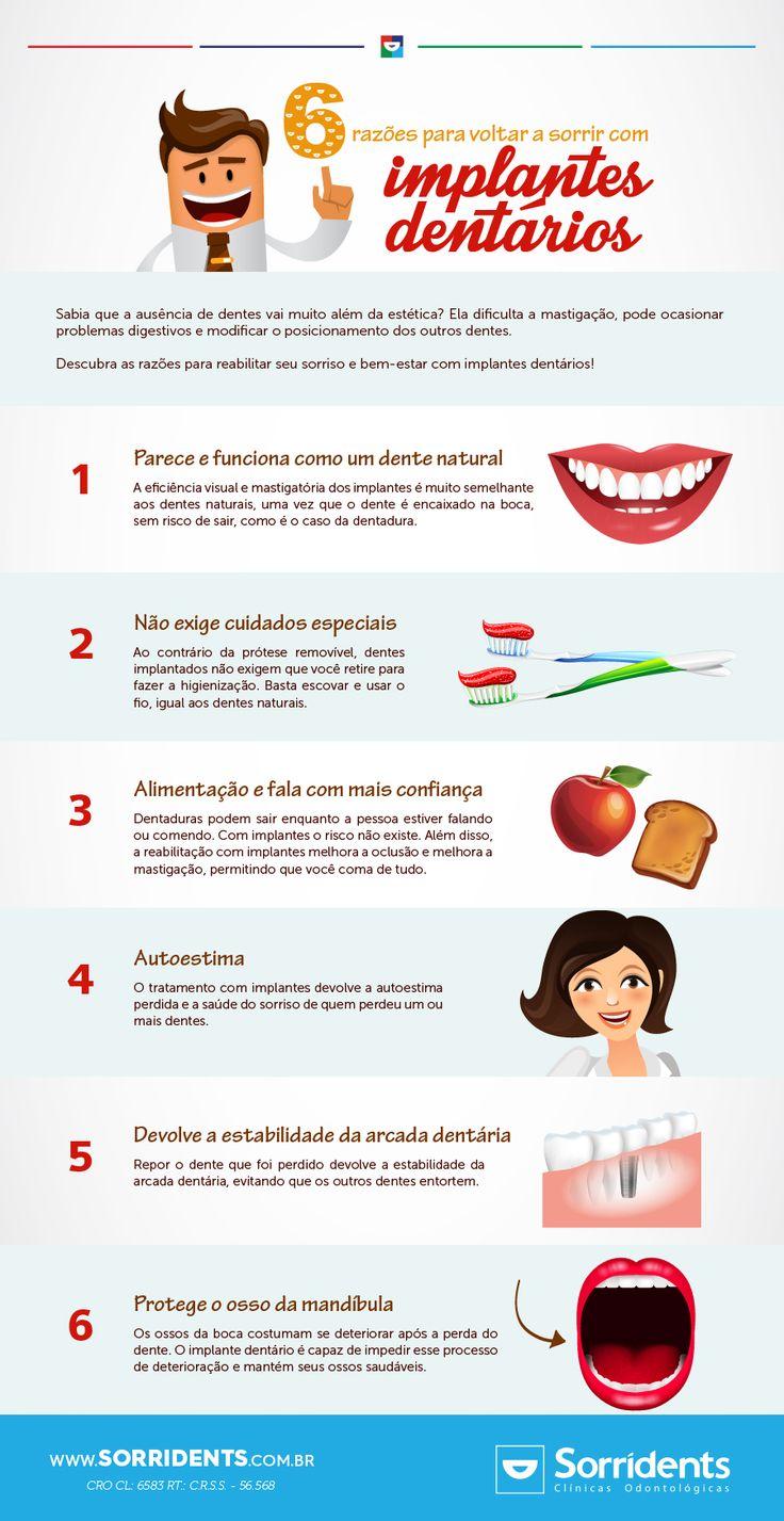 Descubra as razões para reabilitar seu sorriso e bem-estar com implantes dentários!