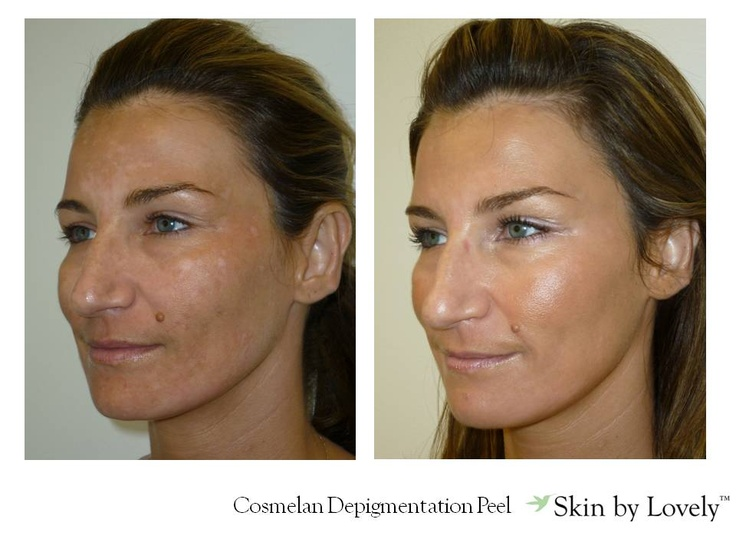 19 best images about Cosmelan Depigmentation Treatment on