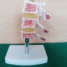 HOT advanced cutaway osteoporosis spine model, Lesions in the lumbar spine model //Price: $US $16.60 & FREE Shipping //