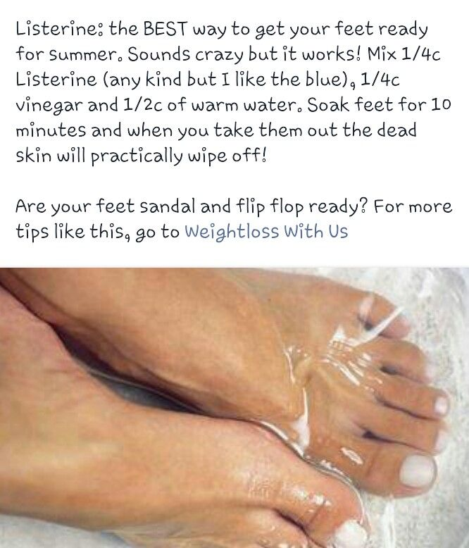I tried this tonight - Hot water, listerine, and vinegar soak - I was able to get all dead skin off my feet and they feel great!