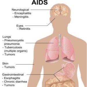 How To Spot Symptoms Of STDs In Men   STD awareness   Pinterest ...