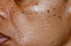 What Causes Skin Tags on Face, Eye Lid, Around the Neck, Inner Thigh and Pictures