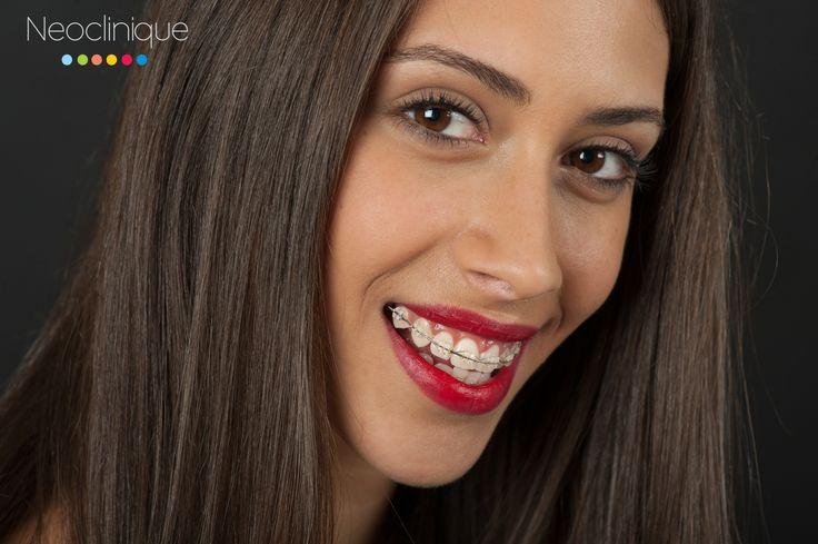 Yasmine 20 ani, Aparat #Dentar #Safir