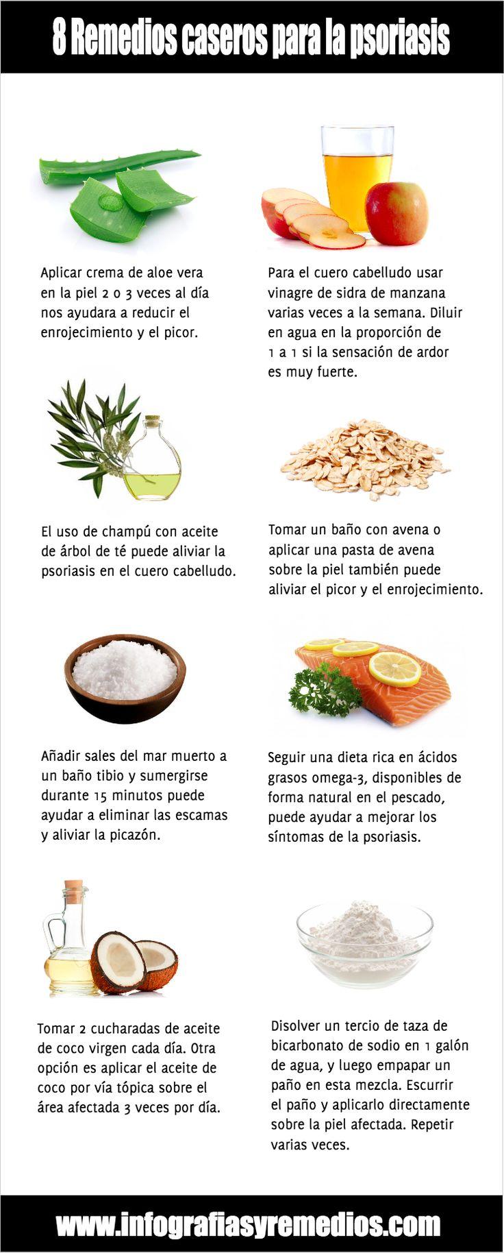 Las medicinas para el tratamiento de la psoriasis de las uñas