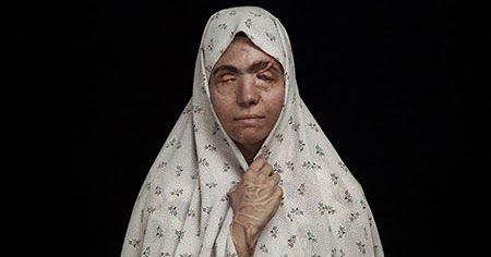 En lo más fffres.co: Asghar Khamseh denuncia con su fotografía los ataques con ácido:… #Art #Arte #Arte_Contemporáneo #Asghar_Khamseh #Blog