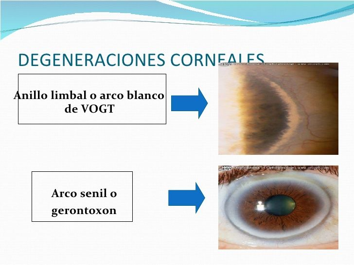 DEGENERACIONES CORNEALES <ul><li>Anillo limbal o arco blanco de VOGT </li></ul><ul><li>Arco senil o </li></ul><ul><li>gero...