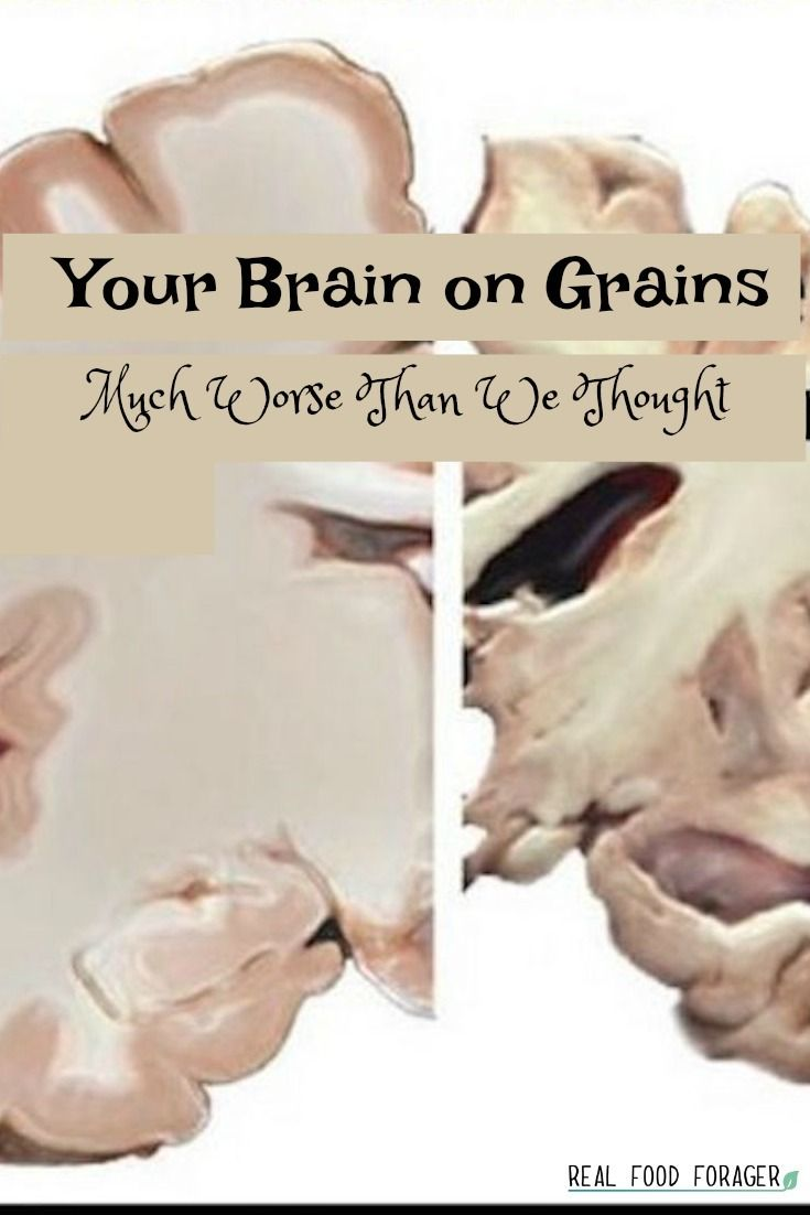 Your Brain on Grains – Much Worse Than We Thought