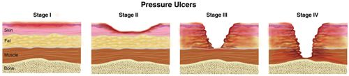 "A pressure ulcer, sometimes called a ""bed sore,"" is a skin injury that occurs in about 40,000 people every year. Usually, pressure sores happen when people are very ill for a long period of time and are not able to change their position in a bed or a chair. People who have conditions such as dementia and spend a lot of time in a bed or a chair might not even realize that they need to change their position."