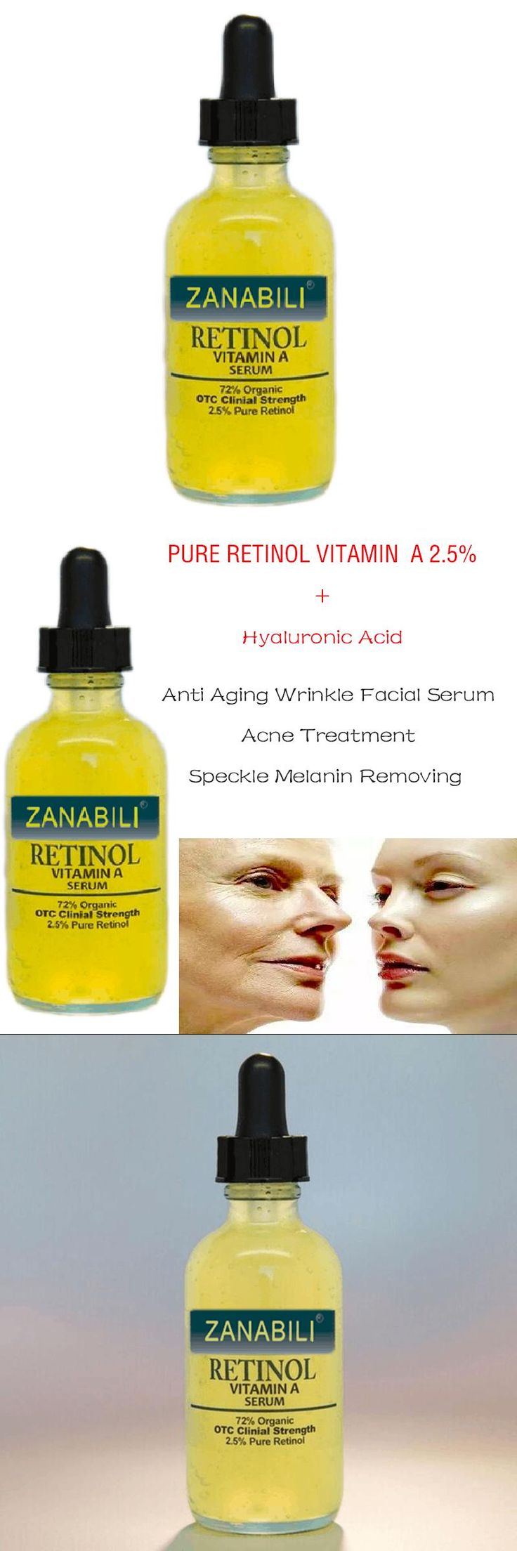 [Visit to Buy] ZANABILI PURE RETINOL VITAMIN A 2.5% + Hyaluronic Acid Acne Scar Removal Spots Facial Serum Anti Wrinkle Whitening Face Cream  #Advertisement