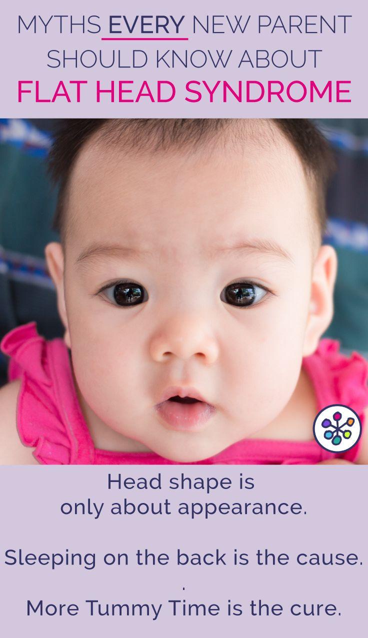 25 Best Ideas About Flat Head On Pinterest Baby Head