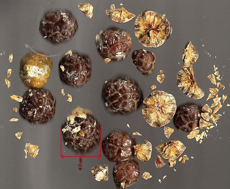 Čínský lékař Dr. Lai Chiu Nan objevil přirozený způsob, jak odstranit žlučové kameny. Žlučové kameny jsou velmi nebezpečné.