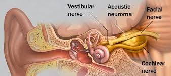 While ABR testing has other benefits, the primary purpose of the test in the vestibular lab is to determine if there is any asymmetry in neural response between the two auditory/vestibular nerves (otherwise known as cranial nerve VIII).